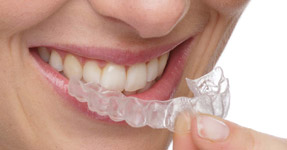 invisalign-for-adults