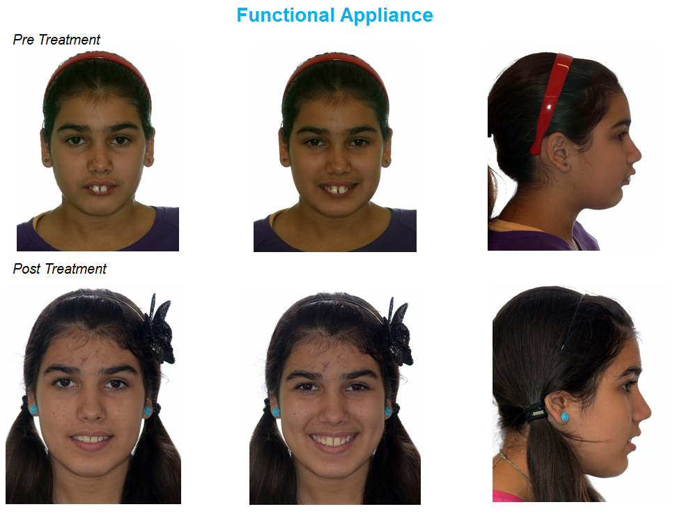 jaw correction, functional appliance, jaw surgery
